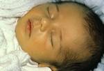 В первые дни жизни есть риск подхватить желтуху  Желтый оттенок кожи может свидетельствовать о наличии желтухи Появляясь на первый или второй день от рождения, желтуха влияет на цвет кожи и глаз малыша. Это явление довольно распространено среди недоношенных младенцев. Вызванная наличием слишком большого количества билирубина (желто-красный пигмент желчи), желтуха обычно полностью исчезает до конца второй недели жизни. Лечение желтухи может состоять из более частых кормлений и, в отдельных случаях, применения лечения светом.