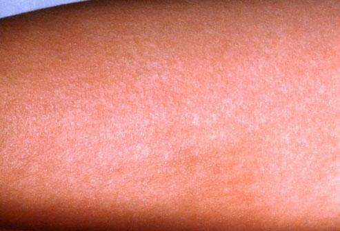 Как выглядит сыпь при мононуклеозе