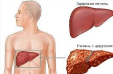 Больных циррозом печени