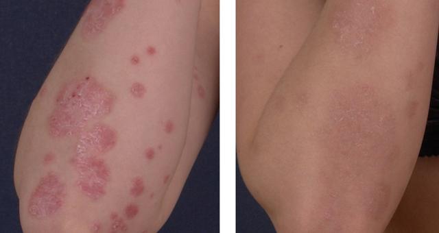 Рак кожи: симпigmage -->  <!-- wp:paragraph --> <p>Обнаружив у себя первые признаки рака кожи, следует обязательно обратиться к врачу дерматологу или дерматоонкологу. Тщательная защита кожи от солнца (особенно это касается белокожих людей и людей с большим количеством родинок).</p> <!-- /wp:paragraph -->  <!-- wp:image {