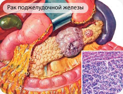 Беременность хламидиоз лечить как