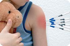 Что такое прививка бцж и реакция манту как сдавать анализ мочи общий правила и рекомендации
