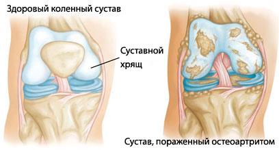 Артрит коленного сустава - Медицинский портал EUROLAB