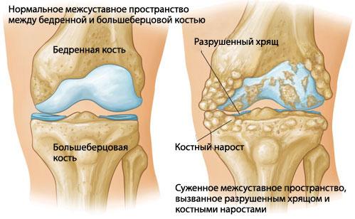 Лечение ревматоидного артрита коленного сустава симптомы плечевого сустава бурсит как лечить от чего возникает