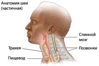 Шейный спондилез - Медицинский портал EUROLAB