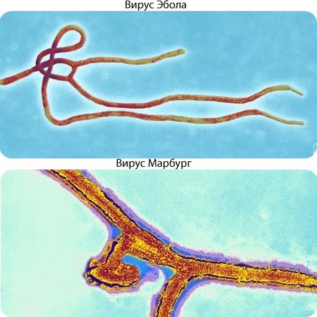 Лихорадка Эбола у детей