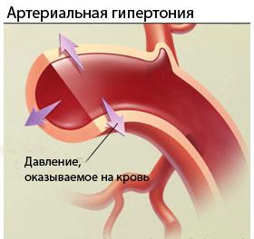 гипертония уровень холестерина