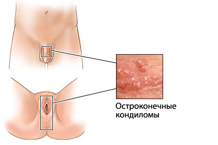 повышение температуры после зачатия