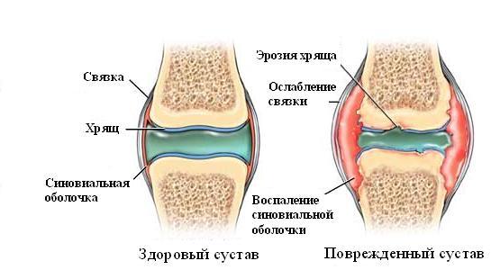 Лікування ревматоїдного артрита | Медицинский портал EUROLAB