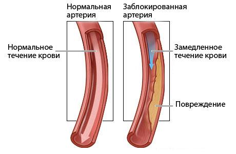 Нормы холестерина для женщин