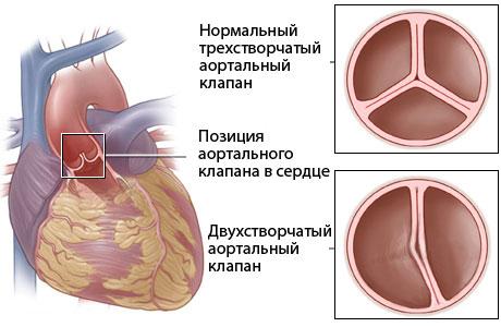 Причины недостаточности аортального клапана - Медицинский портал ...