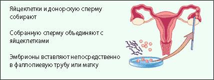 vozrast-donora-spermi