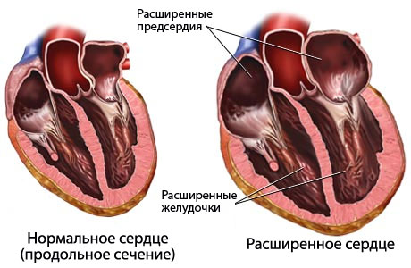 сердечная недостаточность