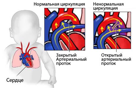 Врожденные пороки сердца (ВПС) у детей