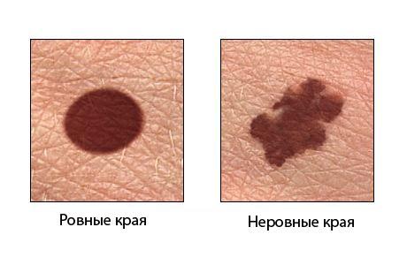 http://www.eurolab.ua/img/st_img/06_09/skin-cancer-6.jpg
