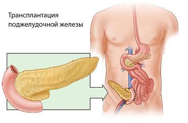 novoe-v-lechenii-saharnogo-diabeta-narodnimi-sredstvami