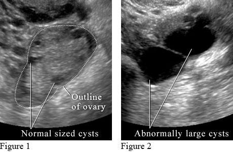 Жидкость в матке при беременности