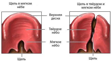 паразиты в мочеполовой системе человека