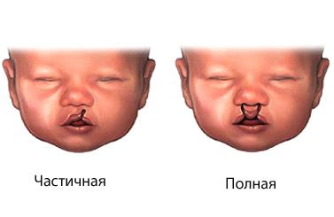 Рецепт: Скумбрия, запеченная в сметане на RussianFood 24