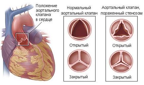Стеноз сердца чем лечить