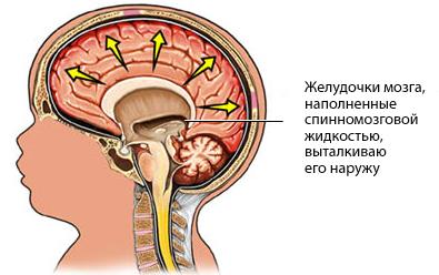 Гидроцефальный синдром у детей