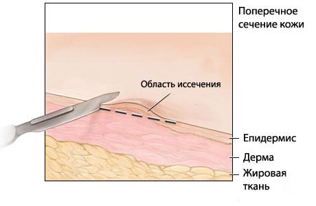 Сведение бородавок азотом