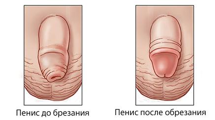 Мужской член до обрезания