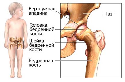 хруст суставов грудничка