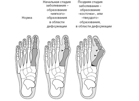Почему развивается бурсит большого пальца стопы - Медицинский ...