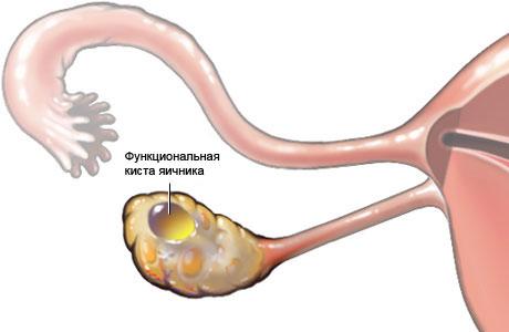 Как лечить спайки после операции на яичнике