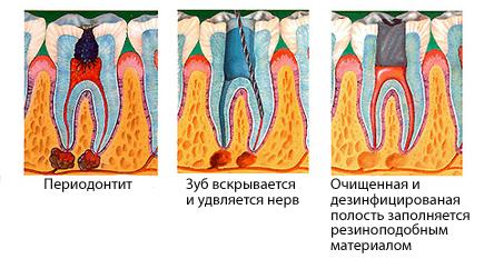 Корень зуба зарос десной не болит
