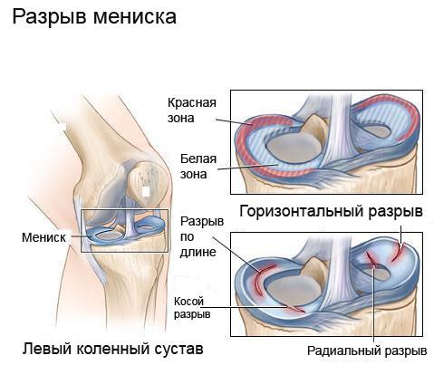 Разрыв мениска коленного сустава упражнения гель для суставов лошадиная сила