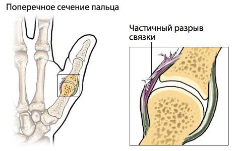 Травмы суставов кисти рук сирень от суставов на водке