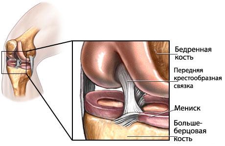 Разрыв пердней связки коленного сустава поперечный сустав