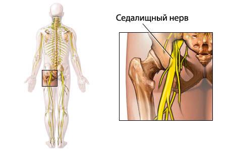 Стероиды при неврите седалищного нерва можно ли принимать стероиды занимаясь дома