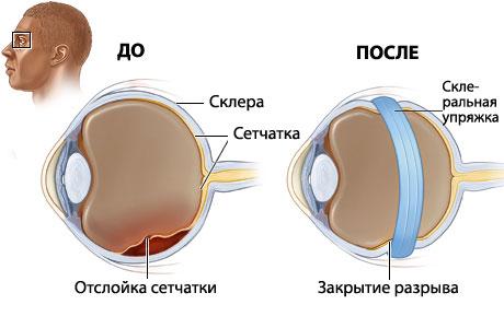Глазное давление самолет