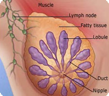 Жировая опухоль молочной железы - Врач онколог