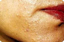 паразиты на лице человека лечение